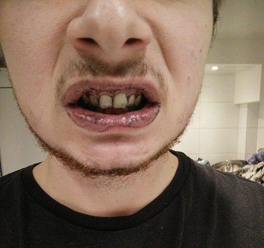 recension tandblekning